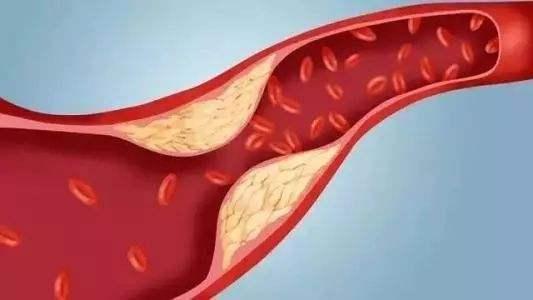 科研人员发现新型降胆固醇化合物